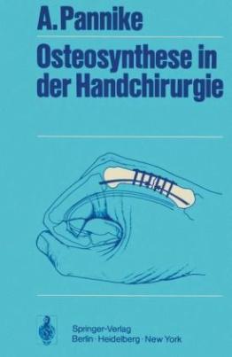 Osteosynthese in der Handchirurgie